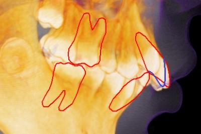 出っ歯のセラミック矯正、出っ歯感が残って後悔,セラミック矯正で出っ歯を治した画像