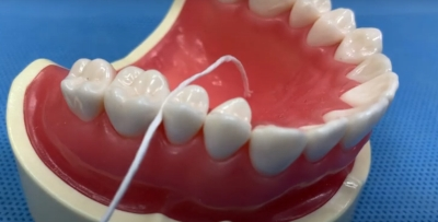 歯に挟まった取れないフロス
