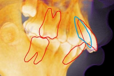 出っ歯のセラミック矯正、出っ歯感が残って後悔,矯正で出っ歯を治した画像