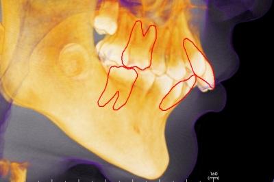 出っ歯のセラミック矯正、出っ歯感が残って後悔,出っ歯のレントゲン写真