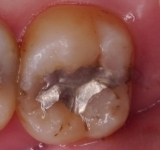 銀歯が取れた。噛み合わせの銀歯の画像,アルパーク歯科・矯正・栄養クリニック,広島市西区草津新町,JR新井口